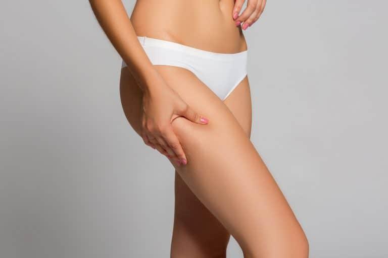 Mulher a apertar gordura localizada nas coxas